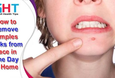 How to Remove Pimples Marks