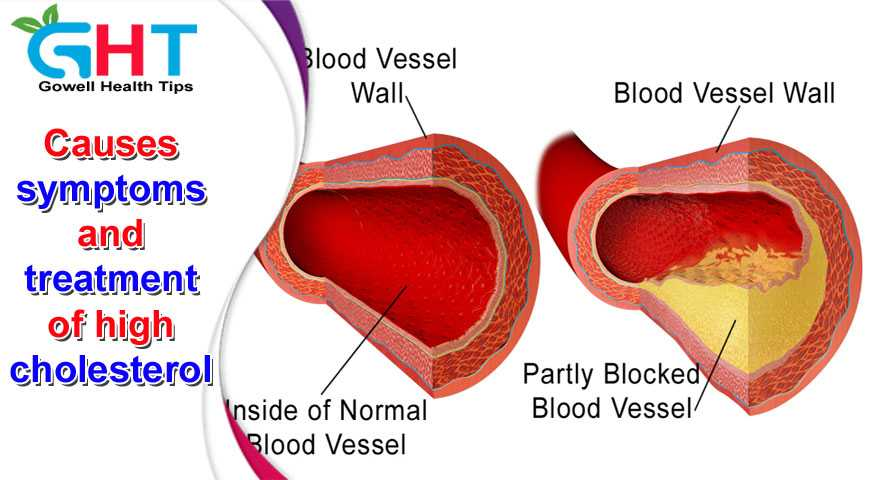 Causes symptoms and treatment of high cholesterol
