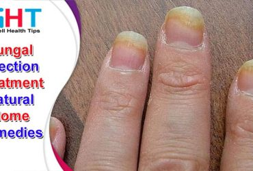 Fungal Infection Treatment Natural Home Remedies