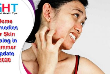 Home Remedies for Skin Itching in Summer